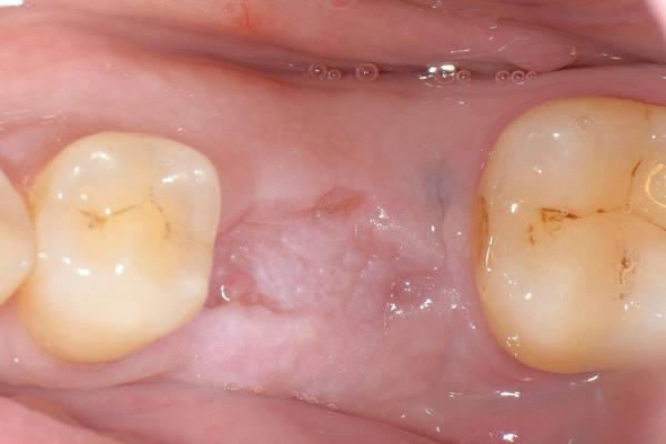 Одномоментная имплантация и направленная костная регенерация