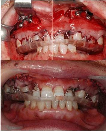 Проведение остеотомии заднего участка верхней челюсти для нормализации высоты межчелюстных соотношений