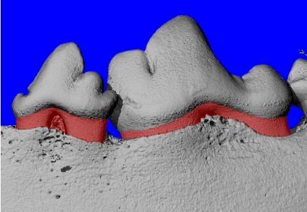 Новые биомиметические капсулы с контролируемым высвобождением помогут в лечении и восстановлении тканей при периодонтите