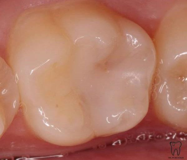 Лечение кариеса 46 зуба
