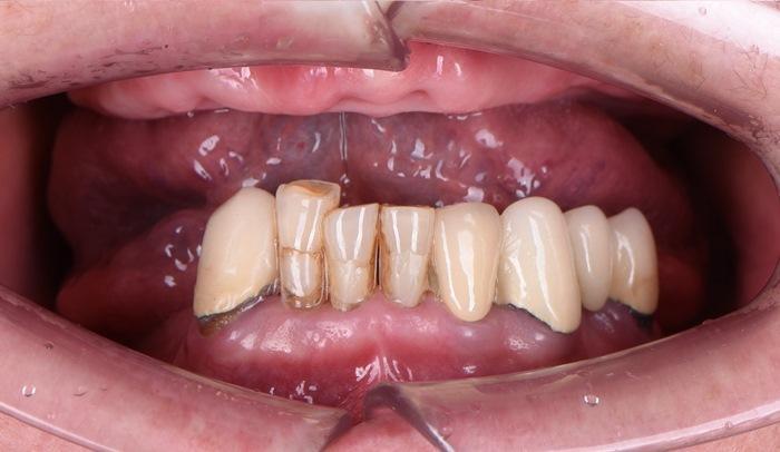 Концепция All-on-4 как современный способ несъёмного протезирование в сложных клинических условиях