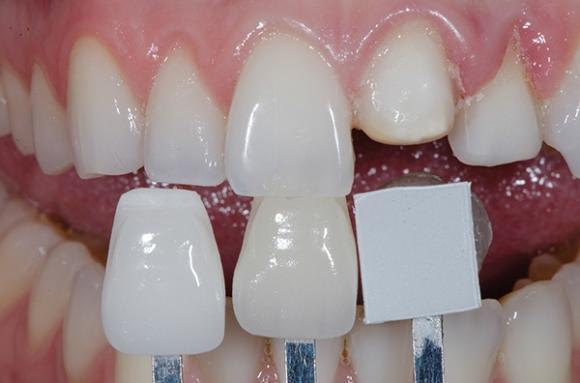 Анализ оттенка зубов и реставраций в условиях калибровки фотографии в Photoshop