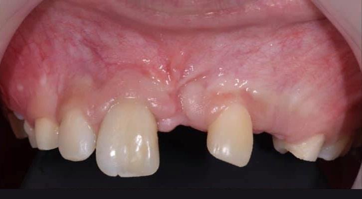 Аутотрансплантация зуба 53 на место 21