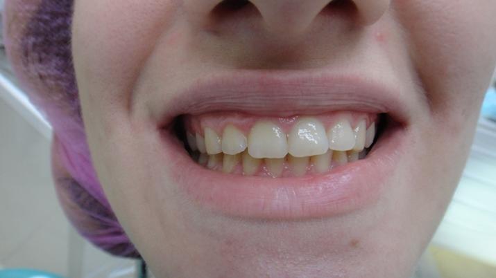 Дизайн десневой улыбки - когда 2 мм отделяют обаяние от красоты