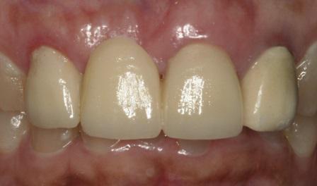 Бондинг частичного циркониевого винир-протеза в переднем участке челюсти