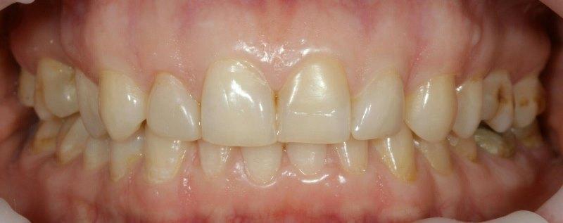 Тотальная реабилитация верхней челюсти при помощи керамических реставраций