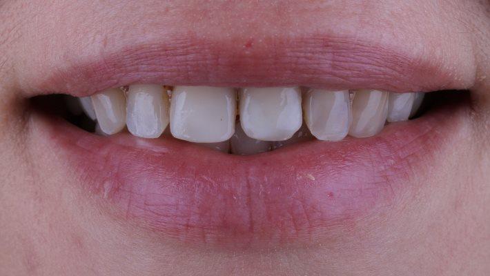 Прямая композитная реставрация зубов 1.2 - 2.2