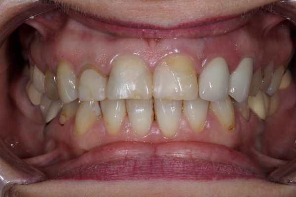 Удаление зуба 2.2 и временное восстановление дефекта фрагмента зубного ряда в области зубов 2.2 и 2.3