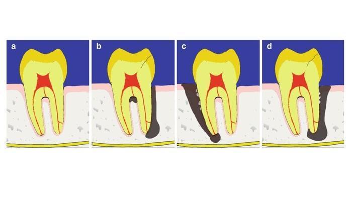Понимание пародонтально-эндодонтических патологий
