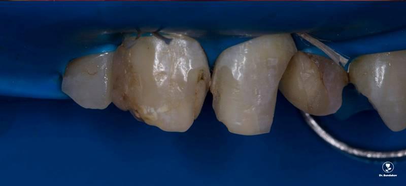 Компромиссное восстановление 1.1, 1.2, 2.1 зубов
