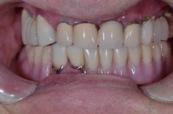 Полная реставрация зубных рядов с одномоментной имплантацией и немедленной нагрузкой