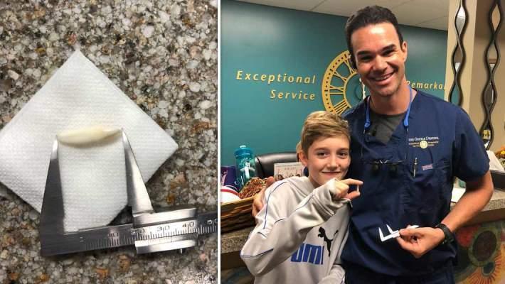 Мальчику удалили молочный зуб с рекордной длиной 2,4 см
