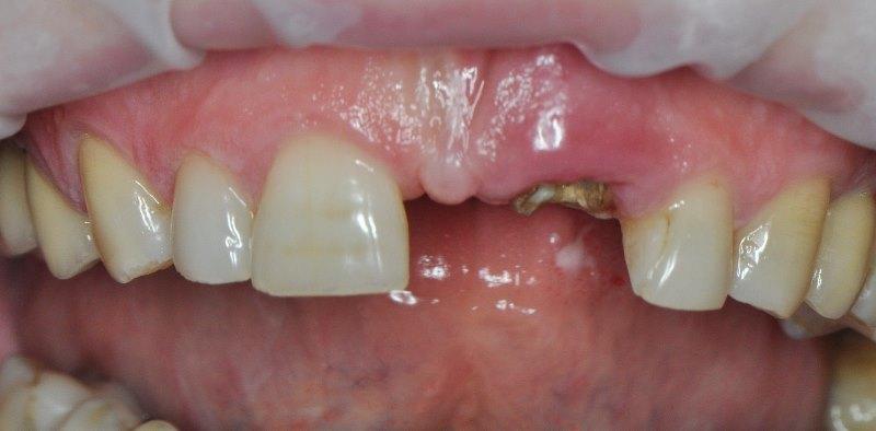 Удаление корня зуба 21 совместно с немедленной имплантацией