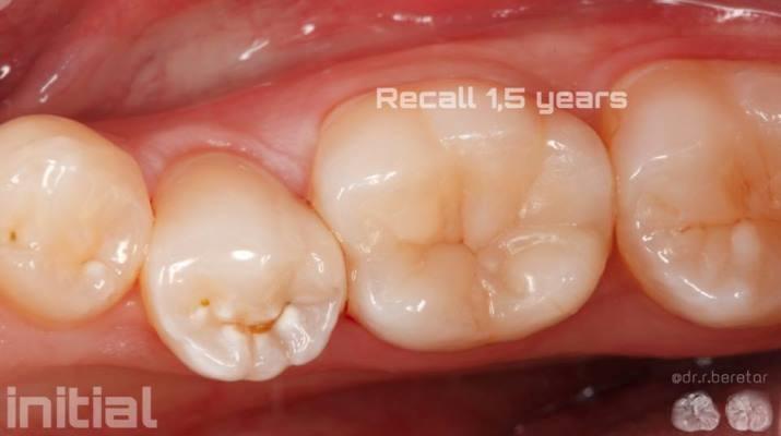 Прямая реставрация зуба 4.5
