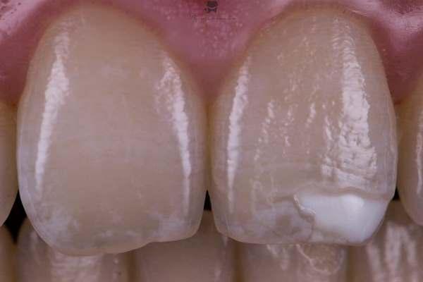 Реставрация 21 зуба