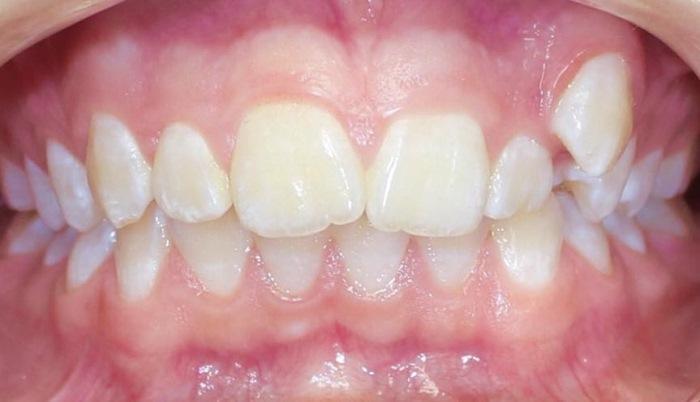 Результат лечения скелетного класса II на брекет-системе Damon Q при дефиците места более 5 мм на верхнем зубном ряду