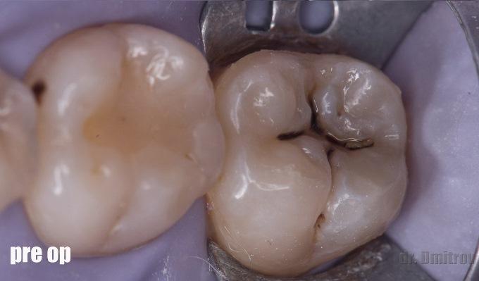 Лечение кариеса дентина 47 зуба