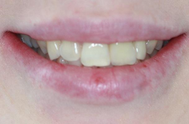 Керамические виниры 1.5 - 2.5 зубов при смещении средней линии