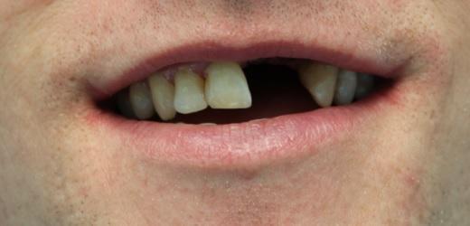 Имплантологическое лечение в эстетически значимой зоне (зубы 21, 22)
