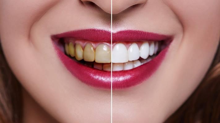 Отбеливание зубов при помощи средств на основе перекиси водорода признали безопасным методом