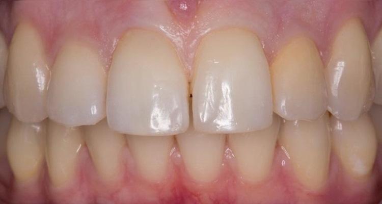 Закрытие диастем во фронтальном участке зубов верхней челюсти