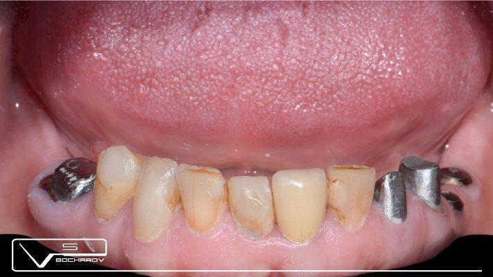 Случай сочетанного протезирования на зубах и на имплантатах на нижней челюсти