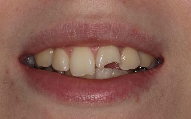 Прямая реставрация после травмы переднего зуба