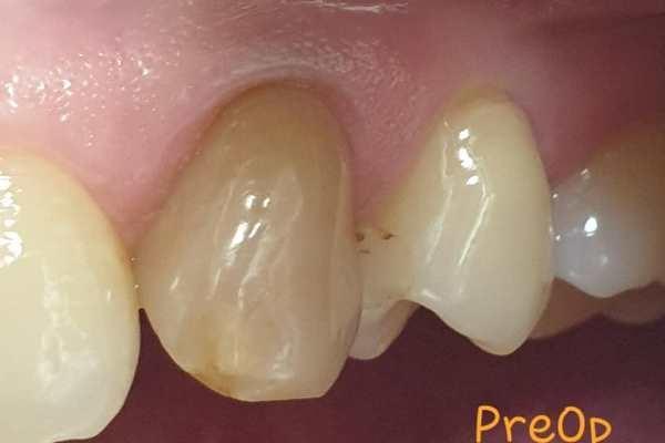 Отбеливание не витального зуба после травмы