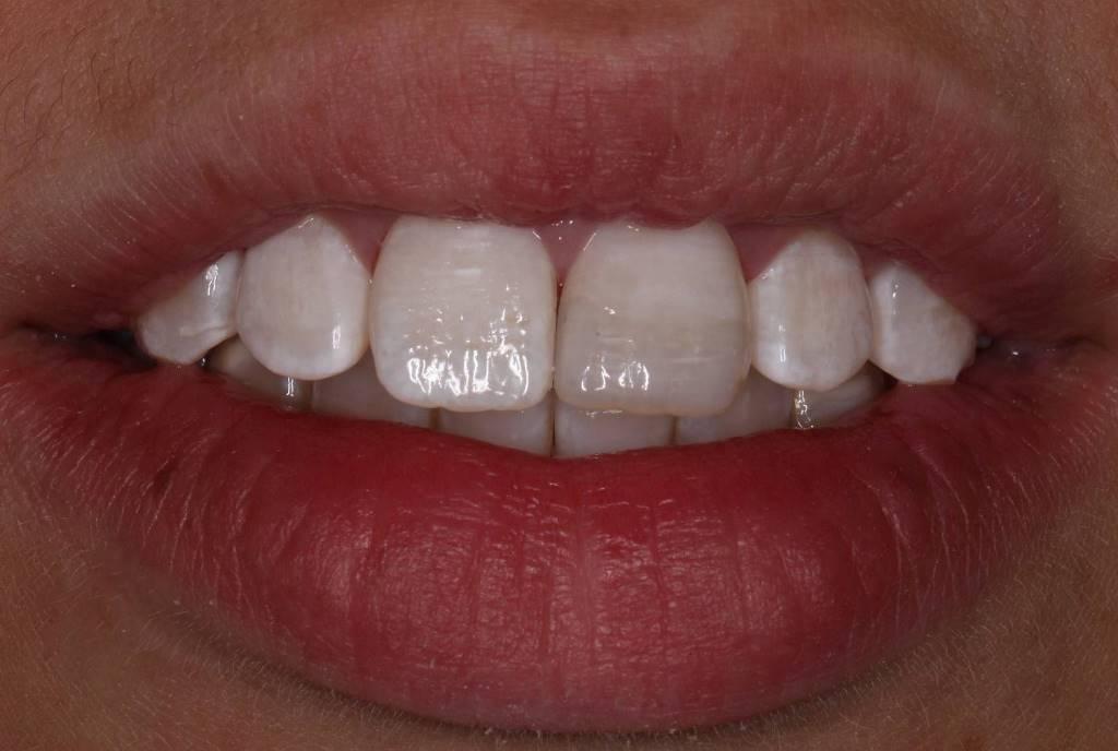 восстановление зуба виниром