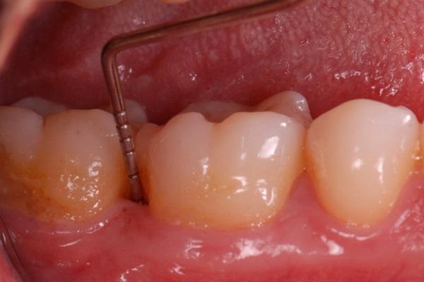 Риски и преимущества зондирования вокруг зубов и дентальных имплантатов