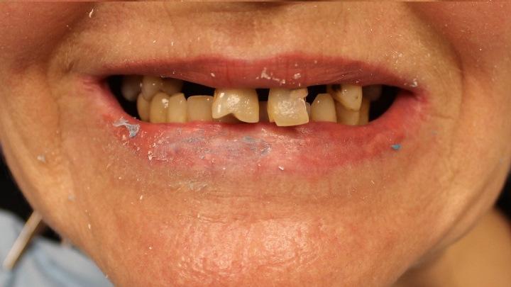 Реабилитация пациента с хроническим генерализованным пародонтитом и субтотальной атрофией верхней челюсти