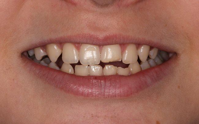 Реставрация после травмы 6 передних зубов