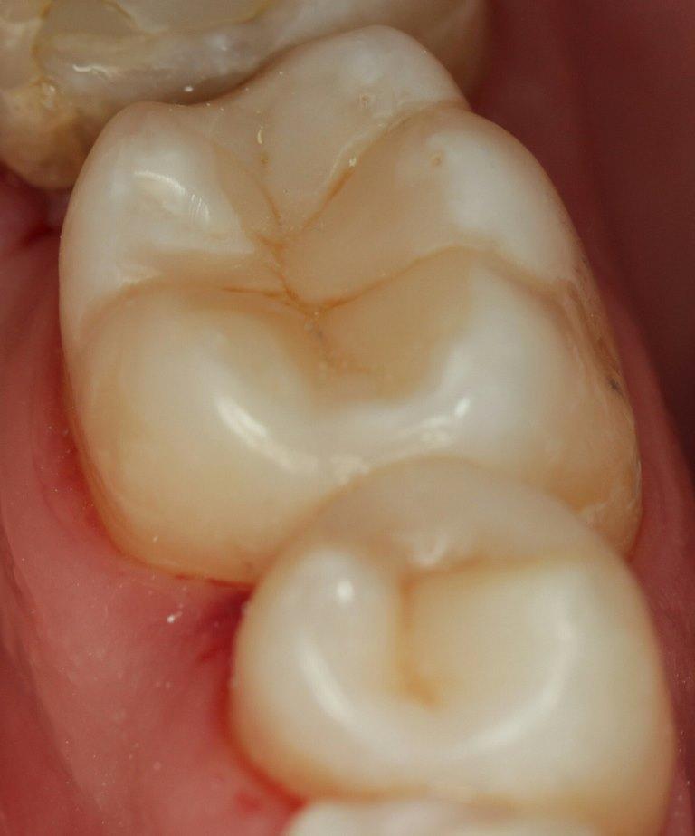 поймаешь зуб шестерка на картинке любят сердечки бижутерии