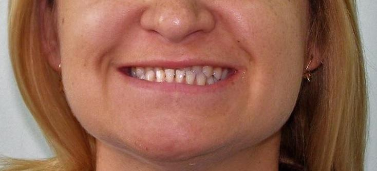 Отдаленный результат ортодонтического лечения III класса