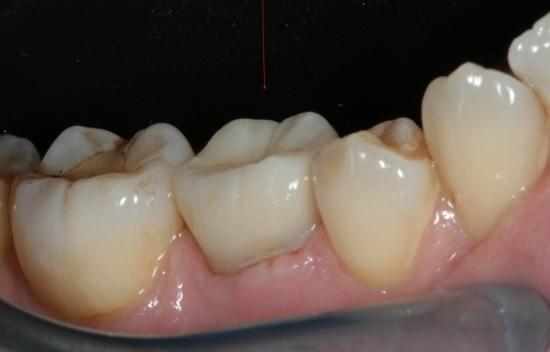 Аутотрансплантация зуба ребенка в смешанном прикусе