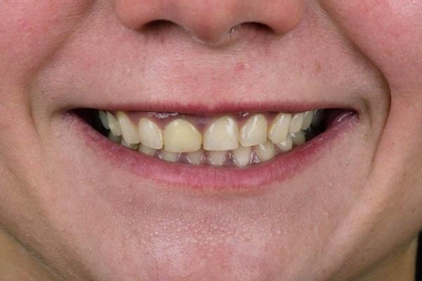 Эстетическая реабилитация фронтальных зубов