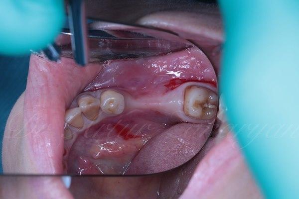 Горизонтальная реконструкция альвеолярного гребня