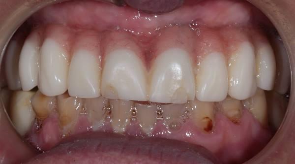 Тотальное протезирование зубных рядов верхней и нижней челюсти пациента коронками из диоксида циркония на имплантатах и винирами E.max