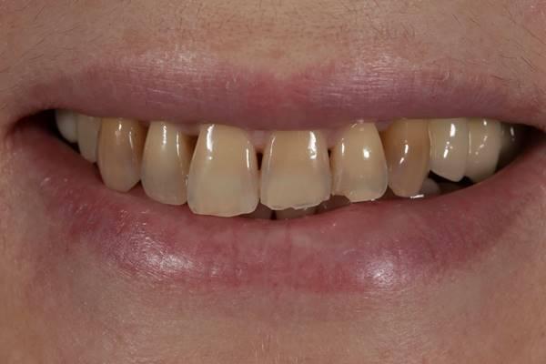 Прямая реставрация зубов верхней челюсти