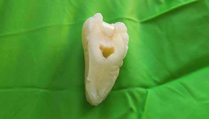 В Швеции разработали новый прочный стоматологический материал