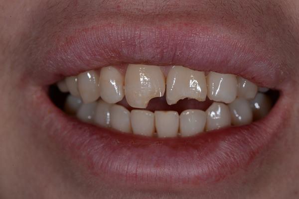 Прямая реставрация передних зубов после падения