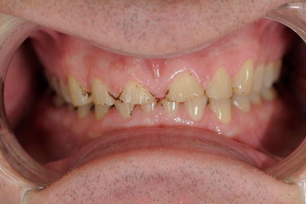 Тотальная реконструкция нижней челюсти и частичная реконструкция верхней челюсти при стираемости зубов