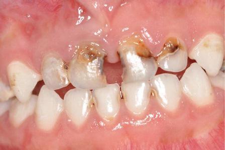 Фотодинамическая терапия в детской стоматологии