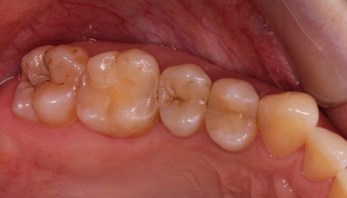 Миниинвазивная реабилитация жевательных зубов