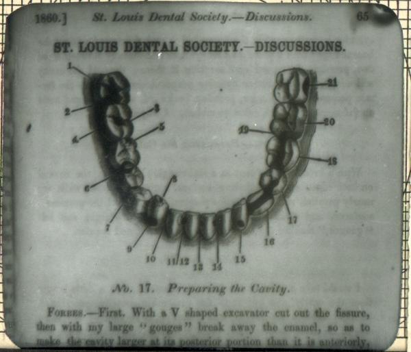 Фрагмент статьи «Особенности препарирования зубных полостей»