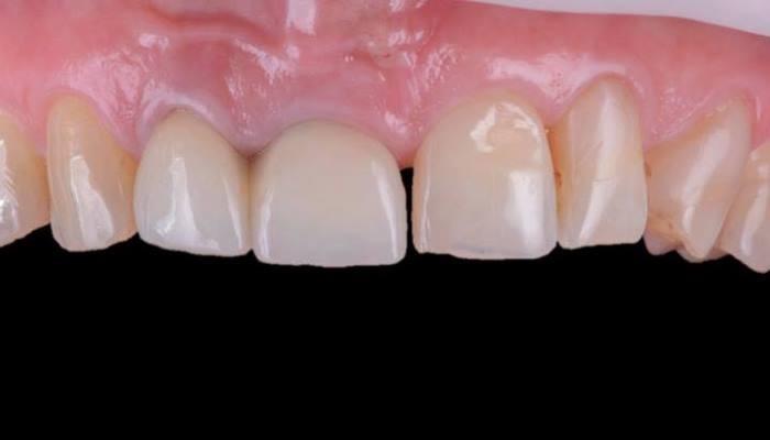Клинический случай одномоментной имплантации с отсутствием вестибулярной костной пластинки