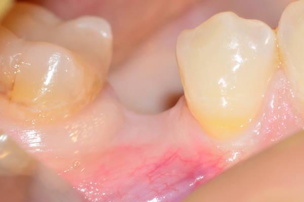 Имплантация с направленной костной регенерацией в область 4.5 зуба
