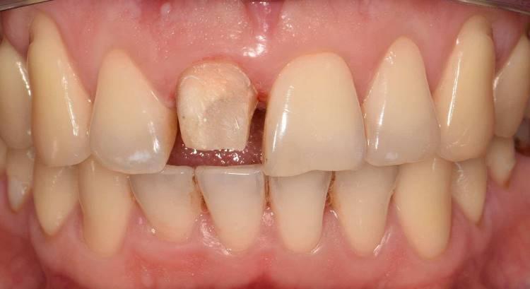 Эстетическая реабилитация центральных резцов верхней челюсти цельнокерамическими реставрациями E.max