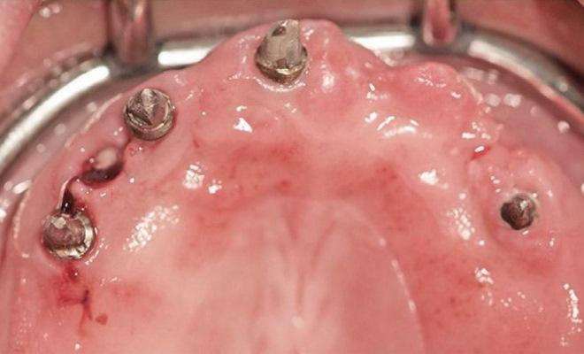 Восстановление деструкции костной ткани челюстей, вызванной действием ятрогенных факторов