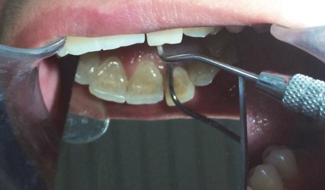 Направленная костная регенерация при лечении дополнительного корня